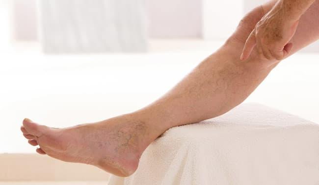Антицеллюлитный массаж при варикозном расширении вен на ногах ...